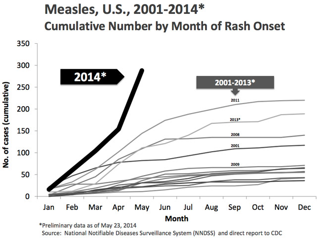 2014 measles rise